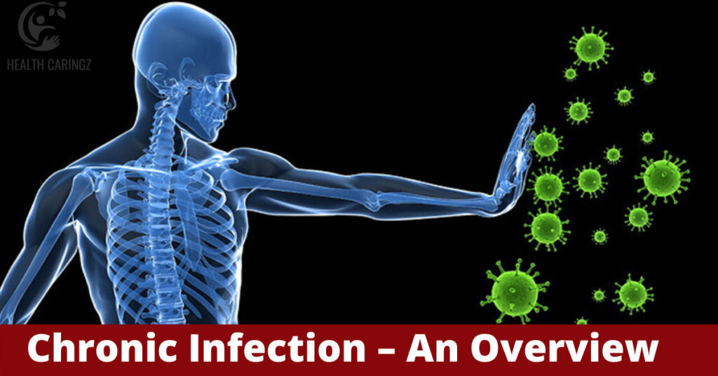 Chronic Infection – An Overview