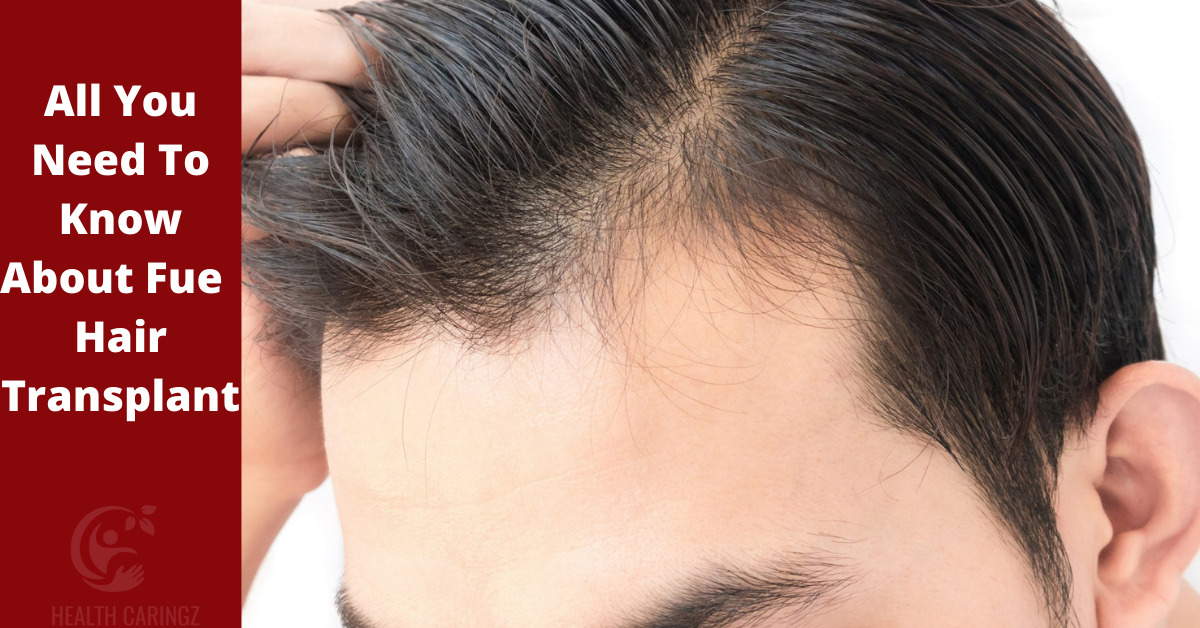 All You Need To Know About Fue Hair Transplant