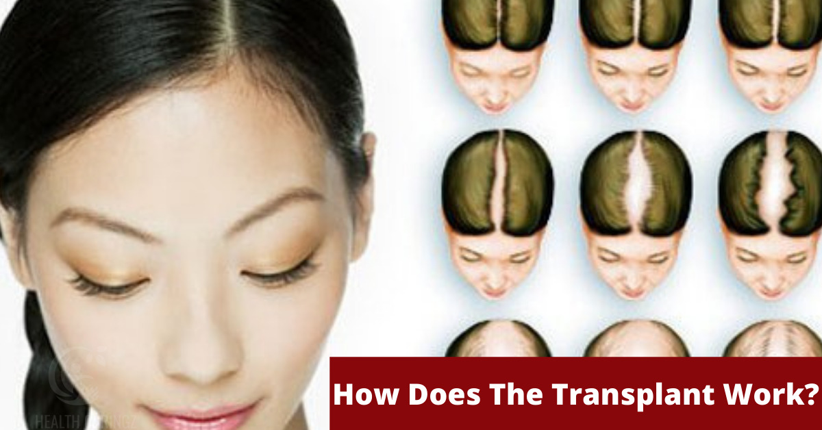 How Does The Transplant Work?