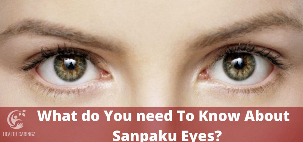 What do You need To Know About Sanpaku Eyes