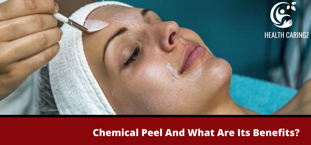 Chemical Peel And What Are Its Benefits