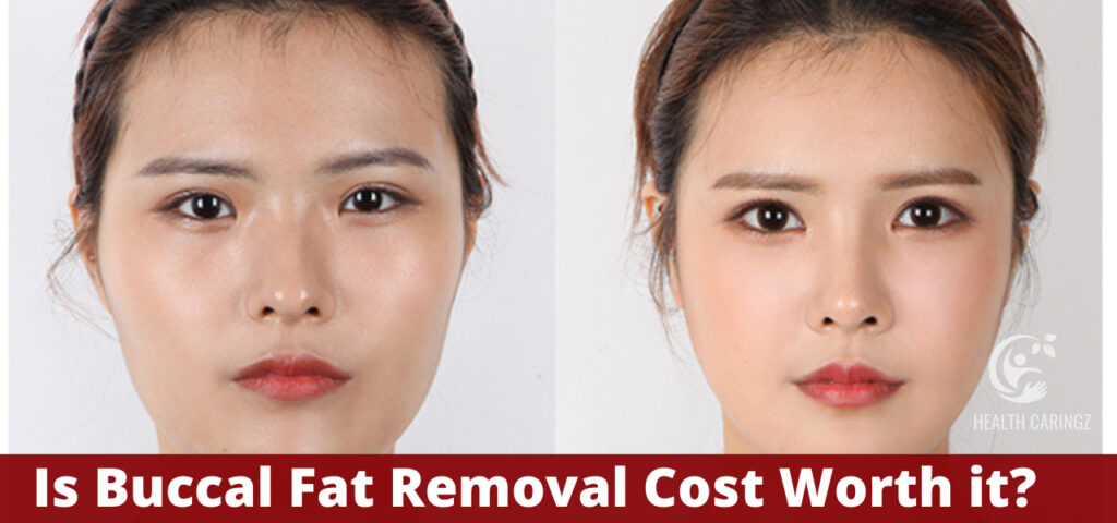 Is Buccal Fat Removal Cost Worth it