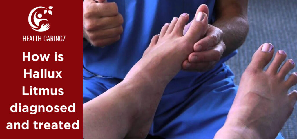 How is Hallux Litmus diagnosed and treated
