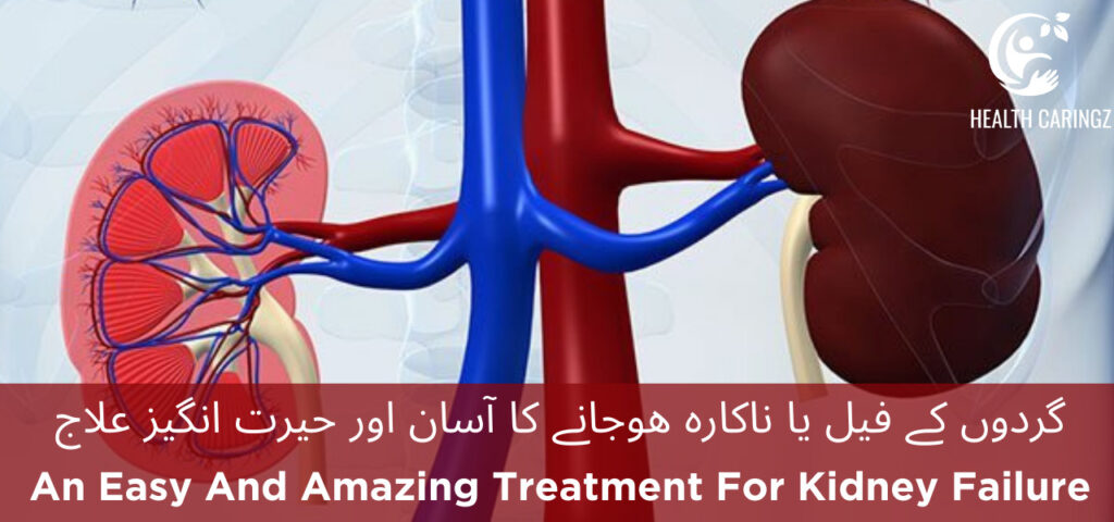 An Easy And Amazing Treatment For Kidney Failure
